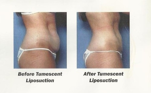 tumescent liposuction